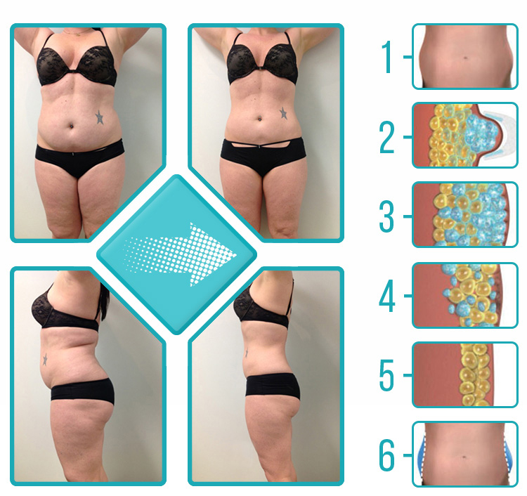 cryolipolysis (1).jpg