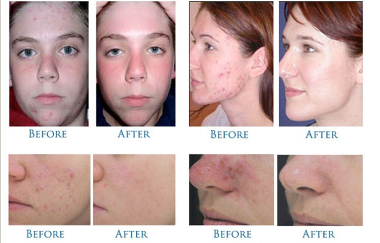 acne removal 750