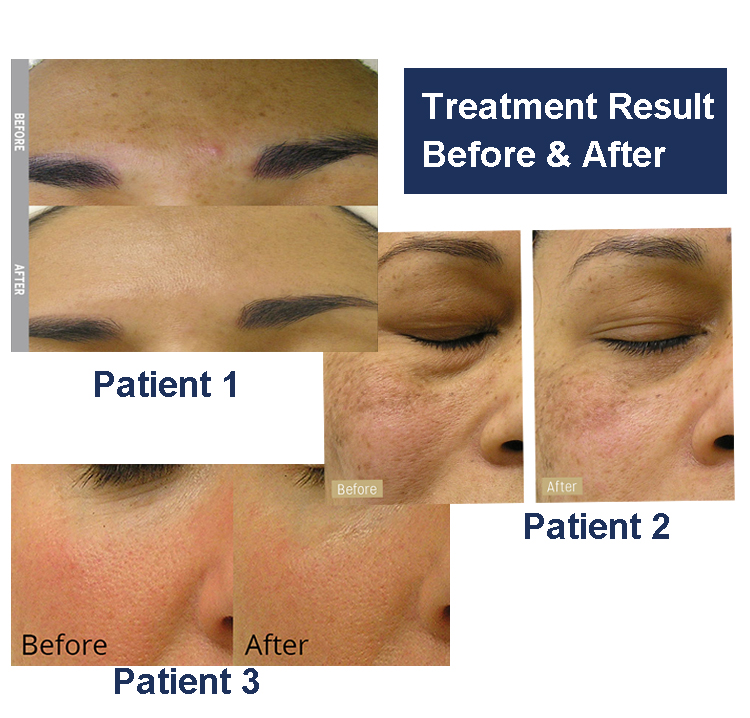 Treatment Result